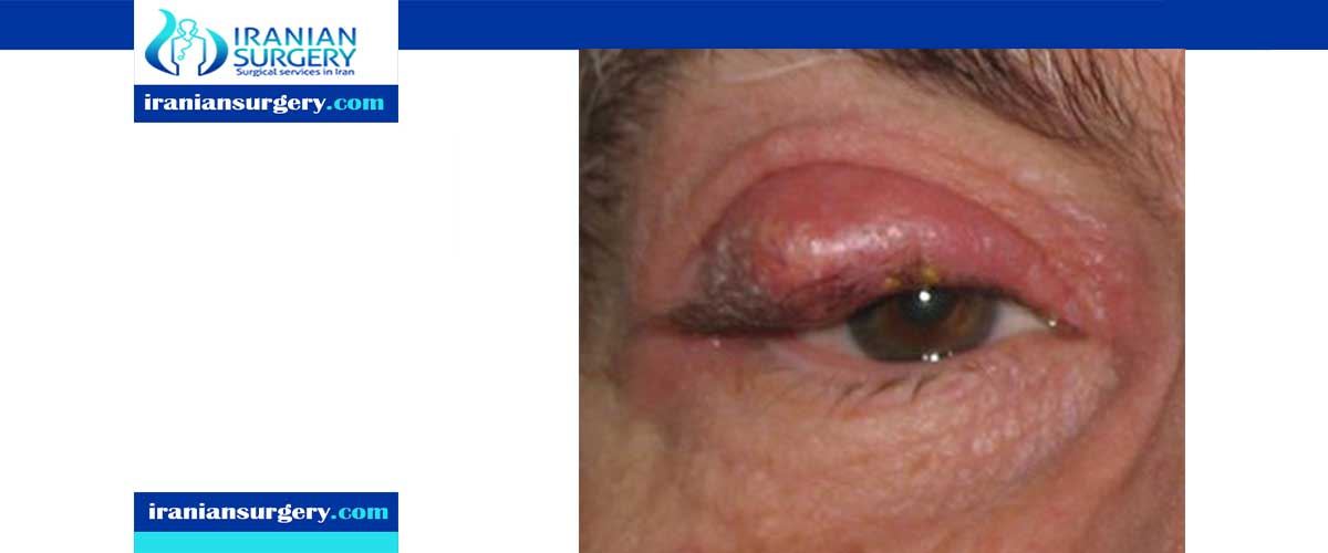 Chalazion surgery aftercare
