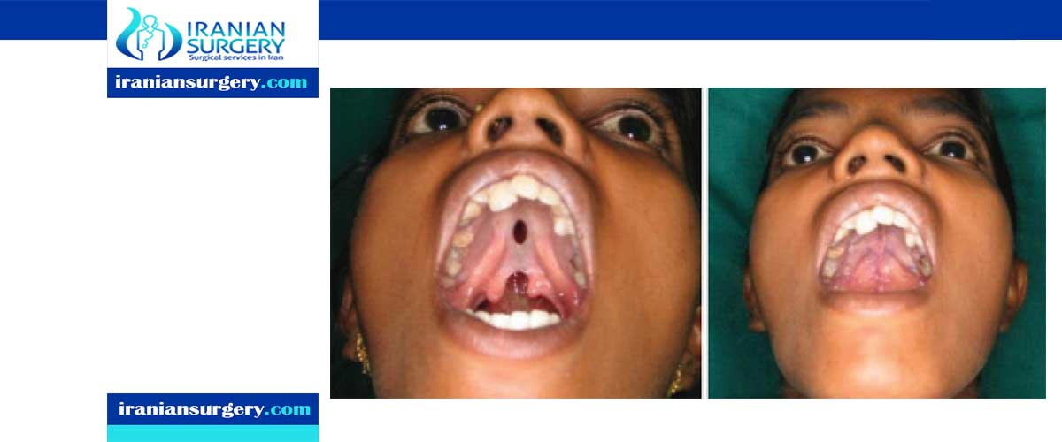 Cleft palate surgery complications