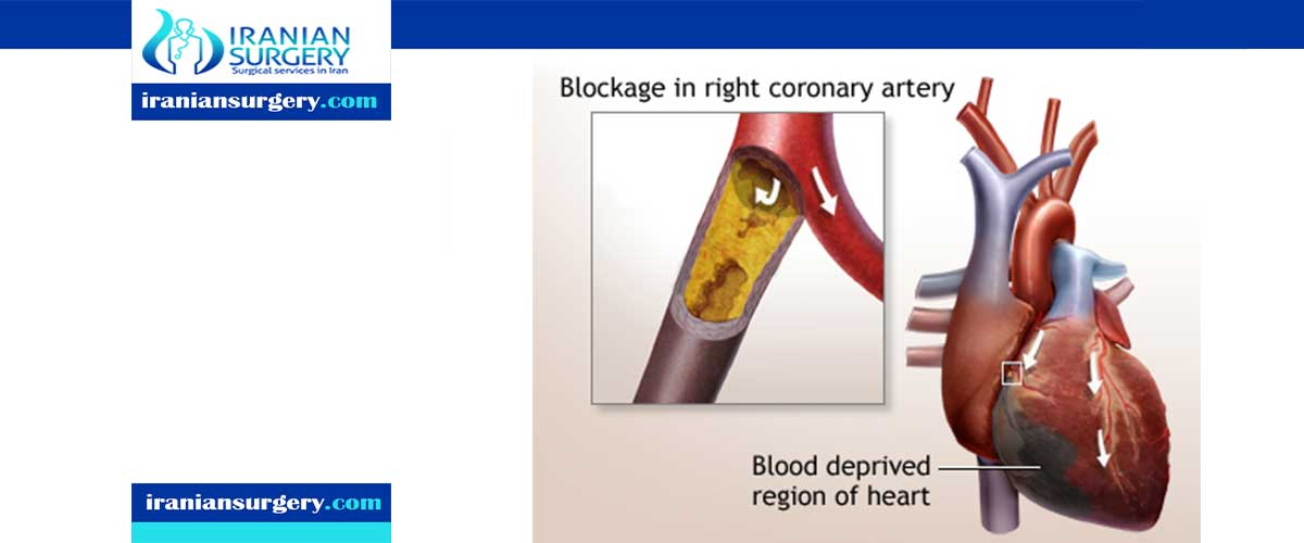 Closed heart surgery indications