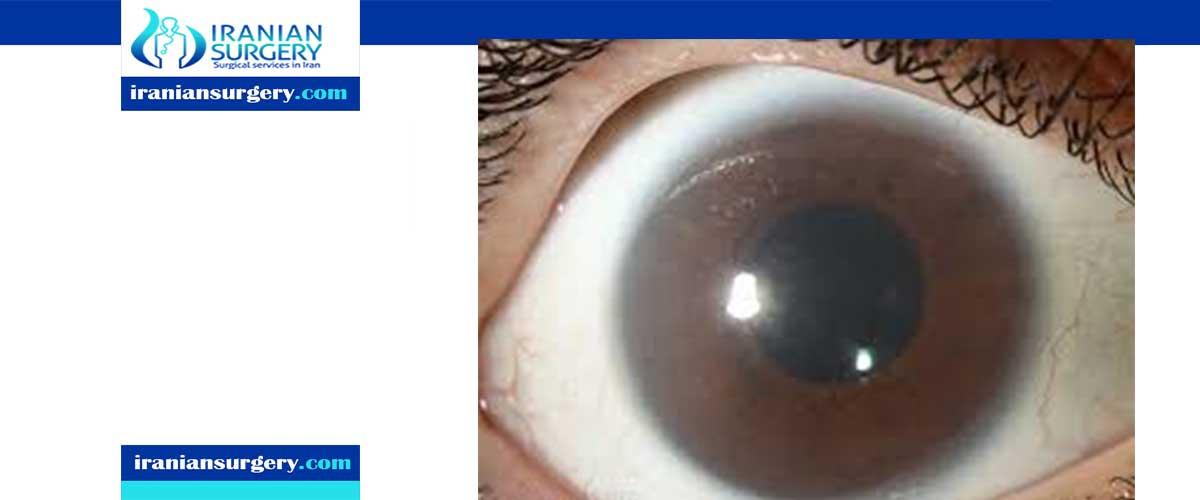 Cloudy cornea causes