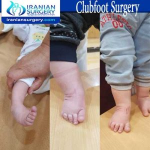 Clubfoot dr Jafari