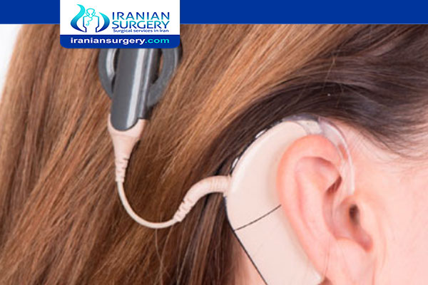 Cochlear implant sound