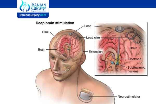 Complication of Deep Brain Stimulation for Parkinson's disease