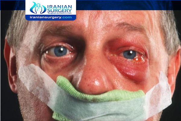 Complications of Endoscopic Sinus Surgery