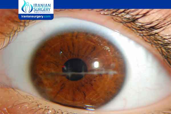 Corneal scarring treatment