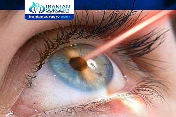 Corneal transplantation surgery in Iran