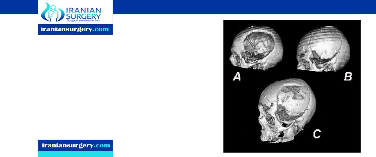 Cranioplasty surgery risks