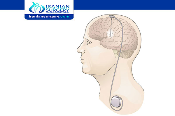 Side Effects of Deep Brain Stimulation (DBS)