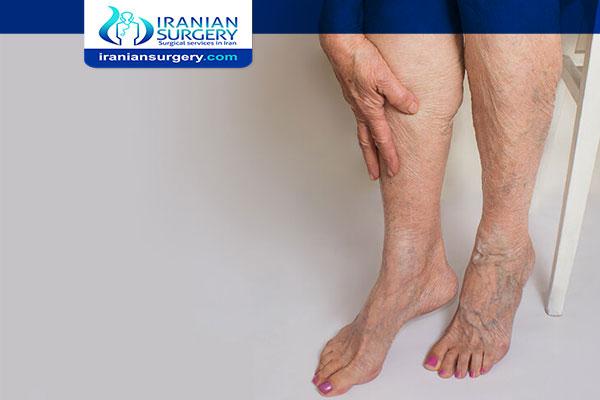 Deep vein thrombosis treatment