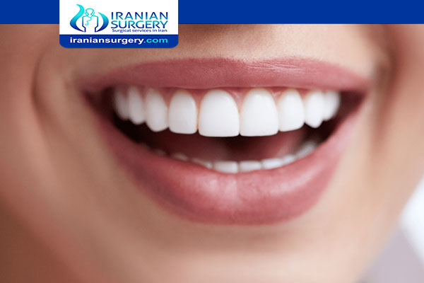 Dental Veneers in Iran