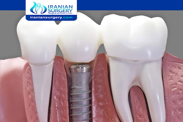 Dental Implants In Iran Dental Implant Cost In Iran 2020 Iranian Surgery