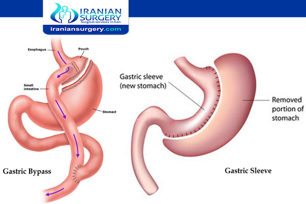 Duodenal Switch vs. Gastric Sleeve