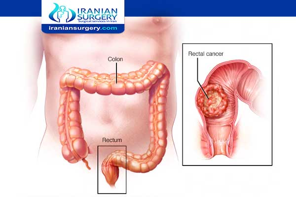 Early Symptoms Of Colon Cancer In Females Colon Cancer Symptoms Iranian Surgery