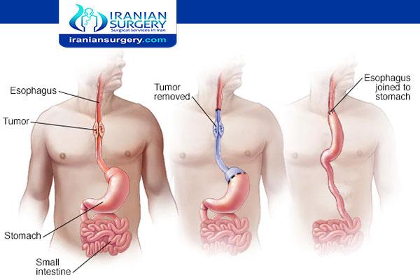 Esophageal cancer treatment