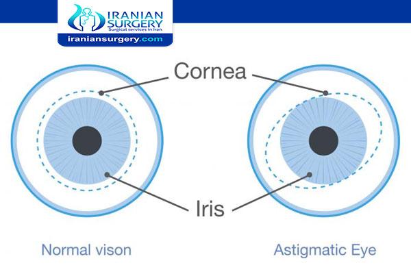 علاج استجماتيزم العين بالليزر