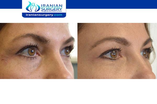 عملية توسيع العيون قبل و بعد