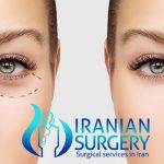 Eyelid Surgery in Iran