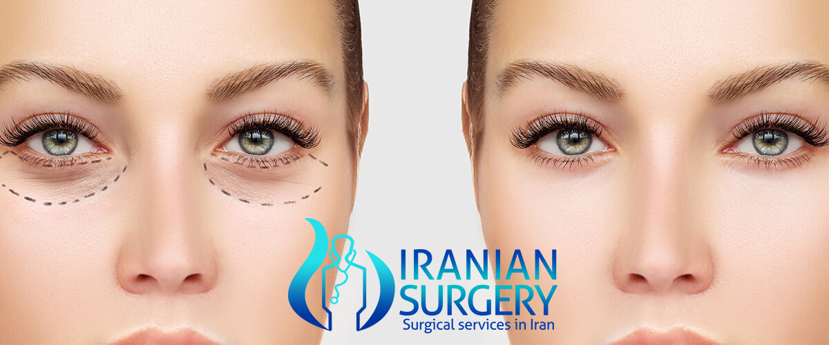 Eyelid surgery cost Iran 2019 | Eyelid surgery in Iran