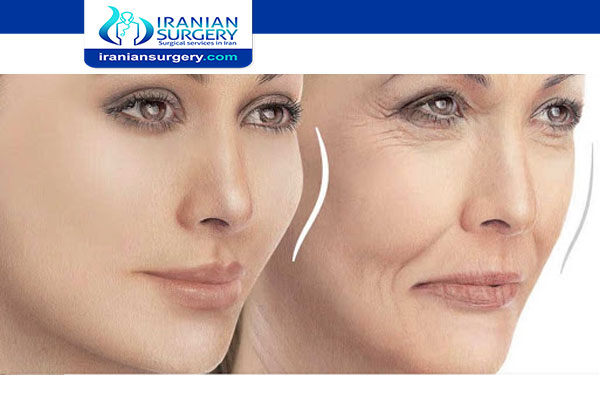 Facial Fat Grafting in Iran
