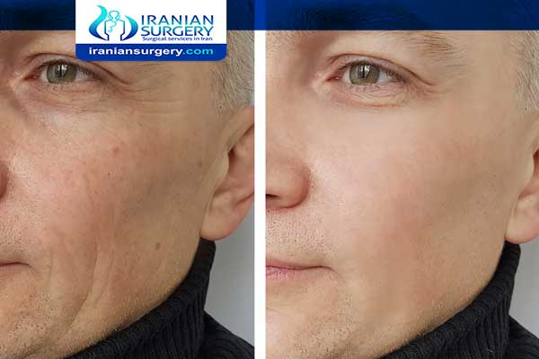 Facial fat transfer after 5 years