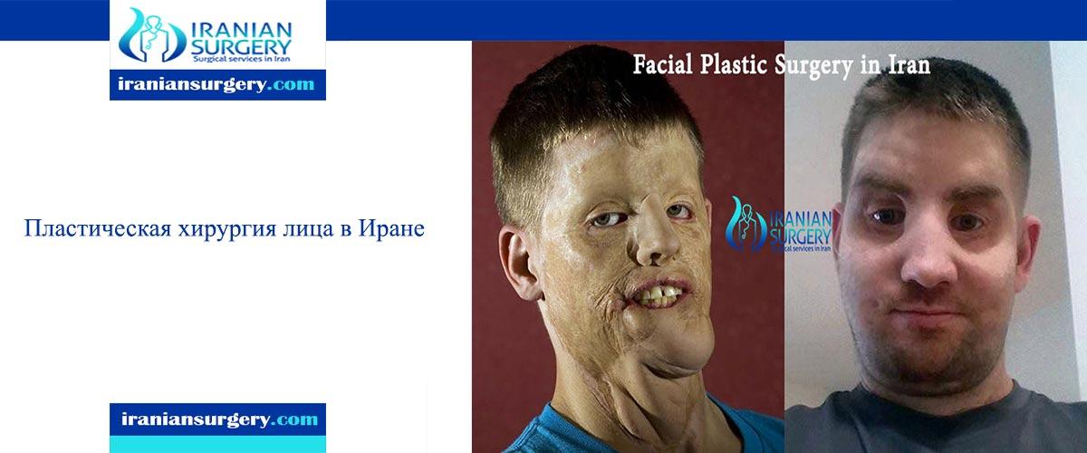 Пластическая хирургия лица в Иране