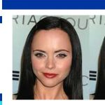 Forehead reduction without surgery