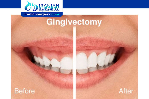 Gingivectomy in Iran