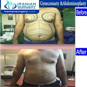 dr fattahi Gyneco & Abdominoplasty