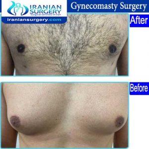 dr Ein abadi Gynecomasty