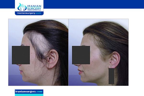 hair transplant for female before and after