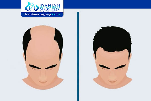 Hair transplant cost in Iran