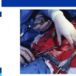 Heart bypass surgery procedure