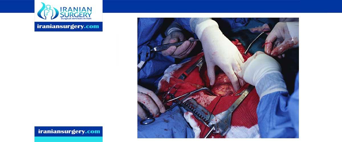 Heart bypass surgery procedure