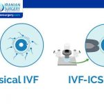 ICSI IVF meaning