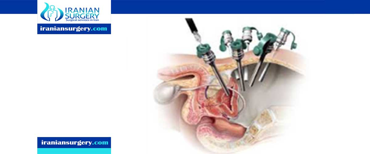 In Laparoscopic Prostatectomy Iranian Surgery