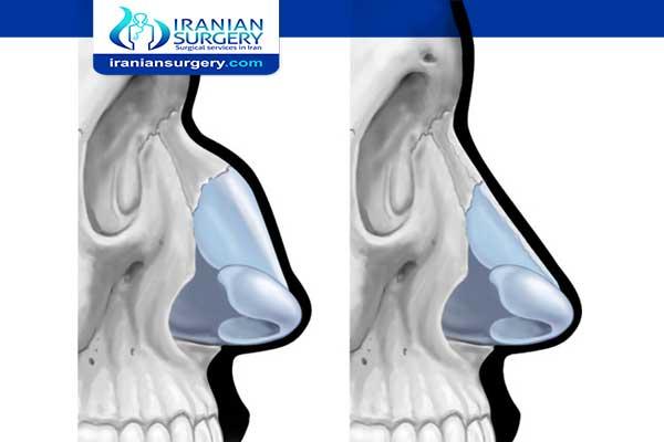 Is a dorsal hump a deformity?
