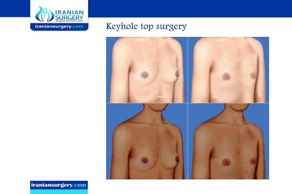 top surgery