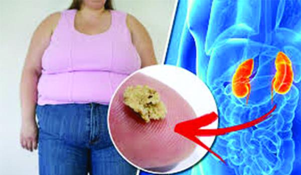 Kidney Stone Surgery in iran