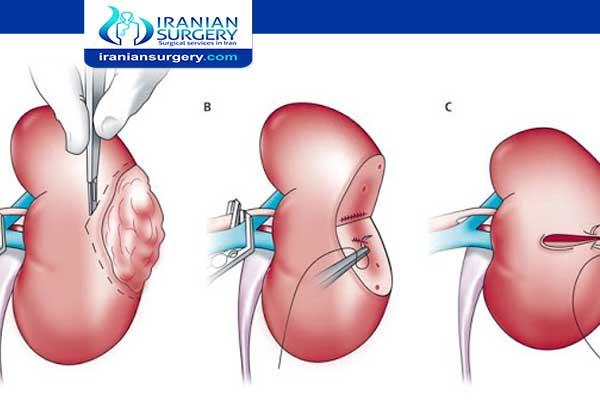 Kidney Cancer Treatment Kidney Cancer Treatment Success Rate