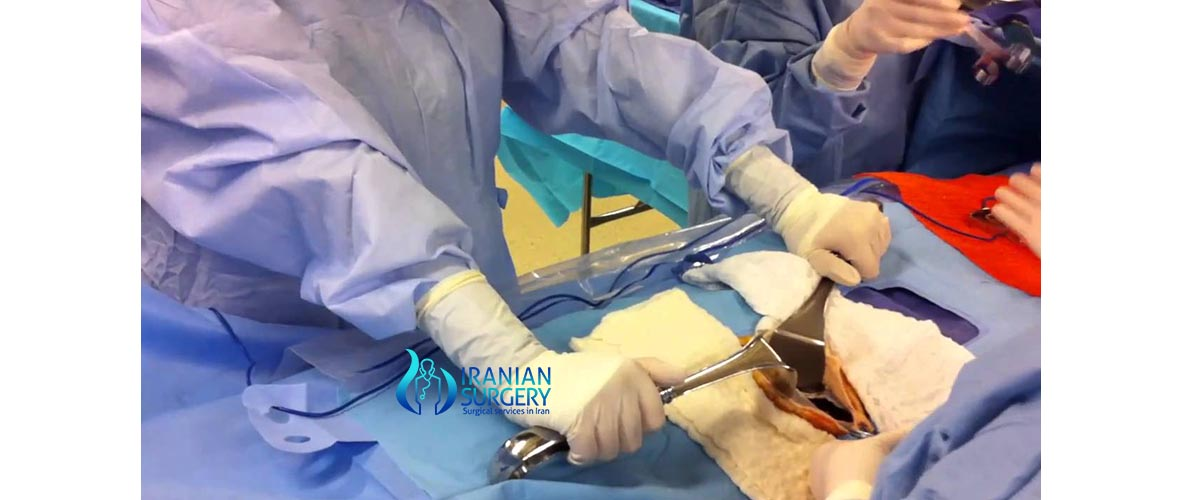 laparotomy surgery in iran
