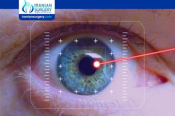 Laser surgeries for glaucoma