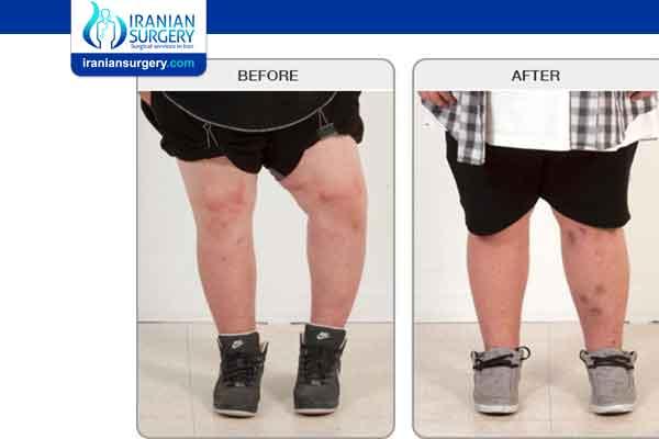Leg Lengthening Surgery Recovery