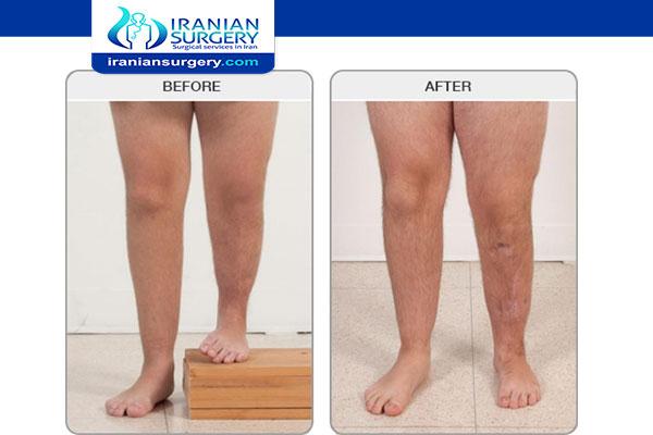 Leg lengthening surgery in Iran