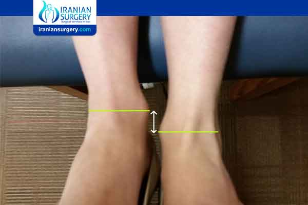 Limb Length Discrepancy Symptoms