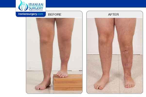 Limb Length Discrepancy Treatment