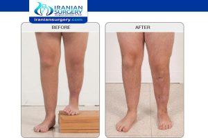 Limb lengthening surgery age