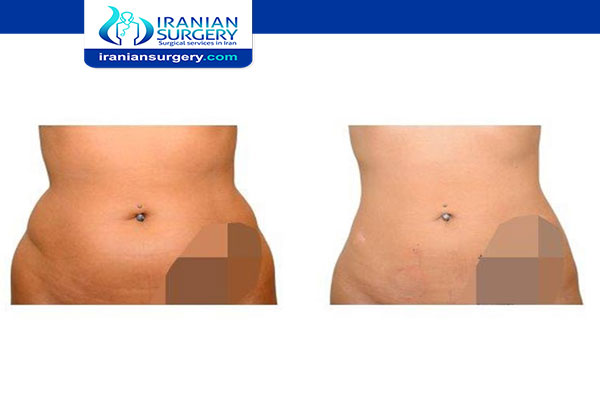 Lipomatic vs liposuction