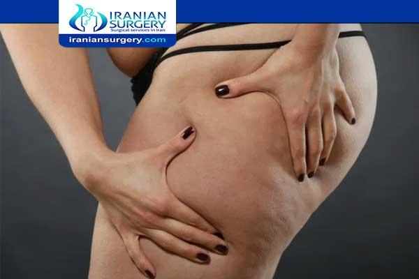 Long term effects of Liposuction
