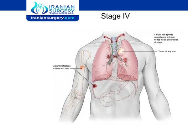 سرطان الرئة المرحلة الرابعة أعراض سرطان الرئة المرحلة الرابعة علاج سرطان الرئة المرحلة الرابعة
