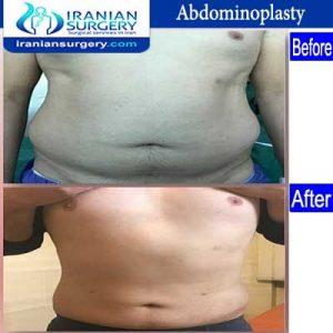 dr fattahi Man Abdominoplasty